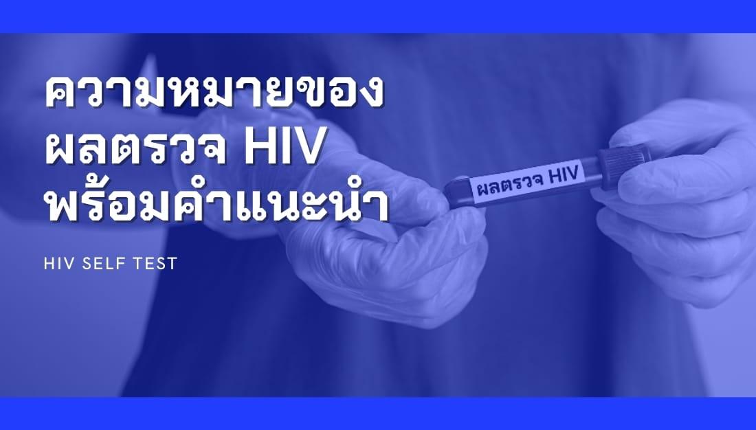 การอ่านผลตรวจเอชไอวี